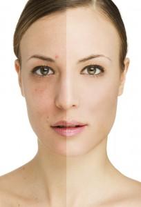 Проблемной кожи лица