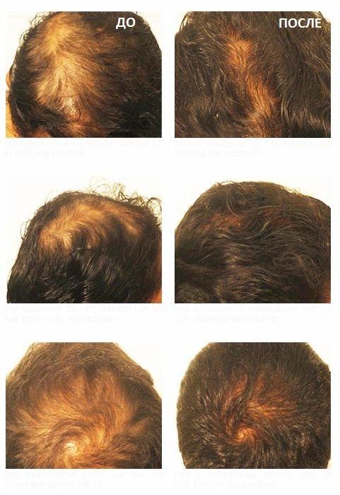 мезотерапия головы для мужчин