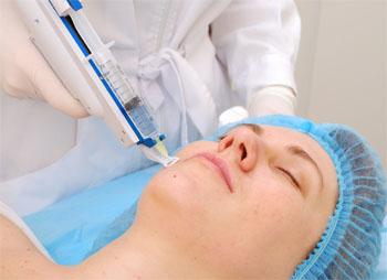 мезотерапия для лица