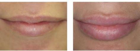 увеличение губ Ювидерм